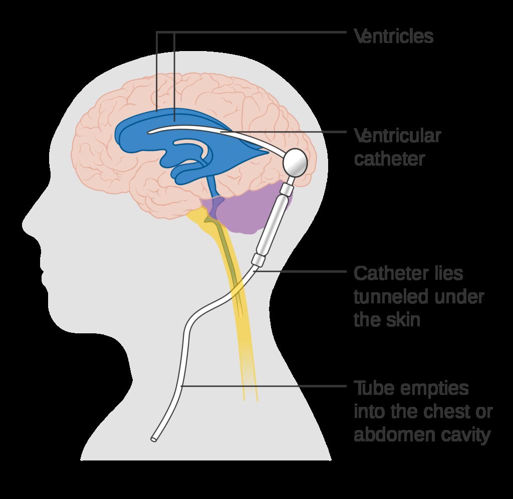 Ventriculoperitoneal Shunt - Treatment for Intracranial Pressure